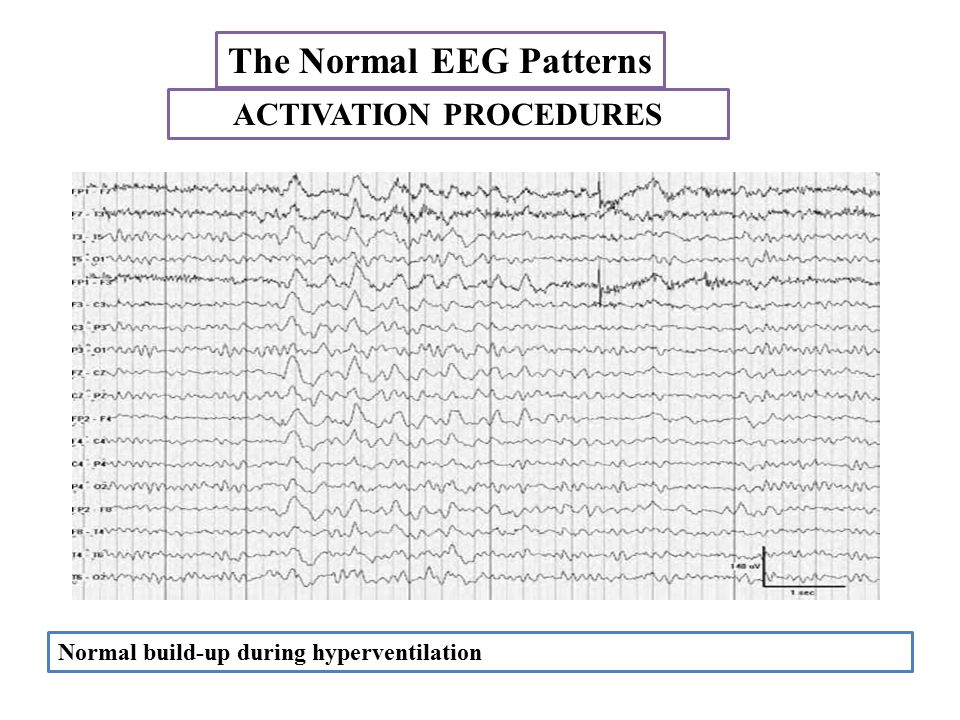 The Normal EEG Patterns Normal build-up during hyperventilation ACTIVATION PROCEDURES