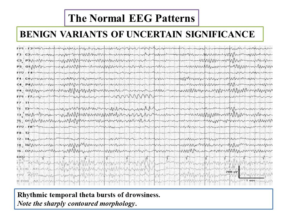 The Normal EEG Patterns Rhythmic temporal theta bursts of drowsiness.