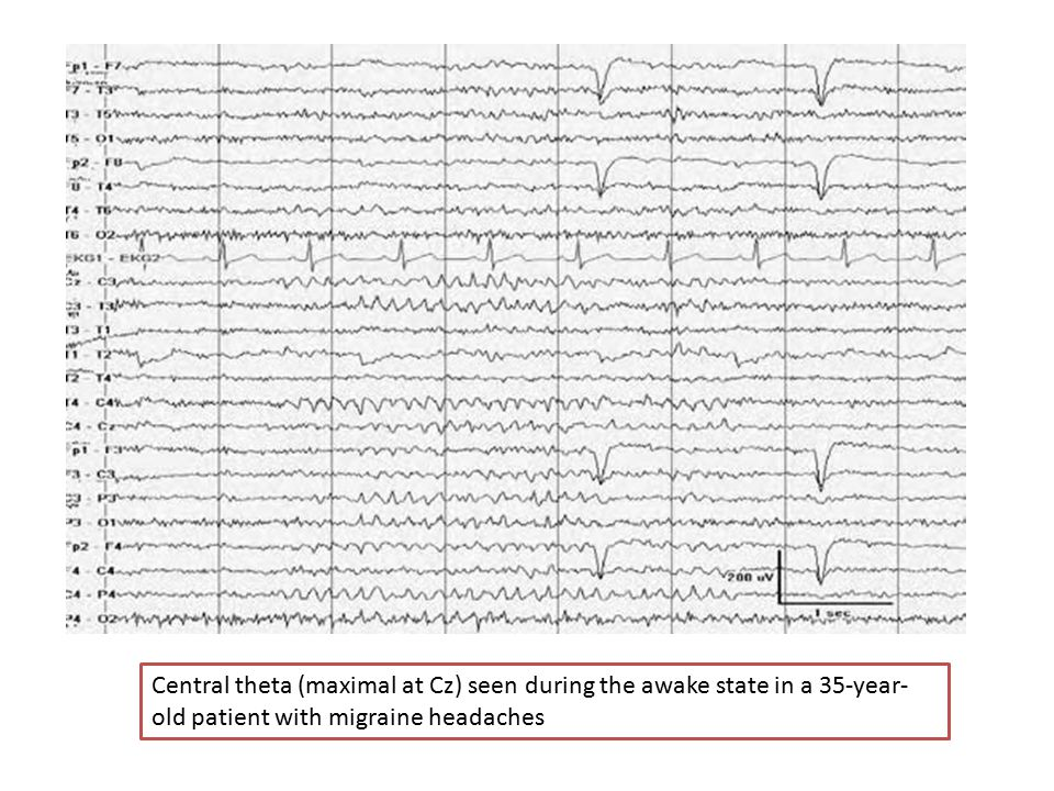 Central theta (maximal at Cz) seen during the awake state in a 35-year- old patient with migraine headaches