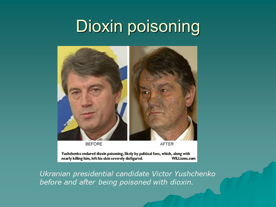 Dioxin poisoning Ukranian presidential candidate Victor Yushchenko before and after being poisoned with dioxin.