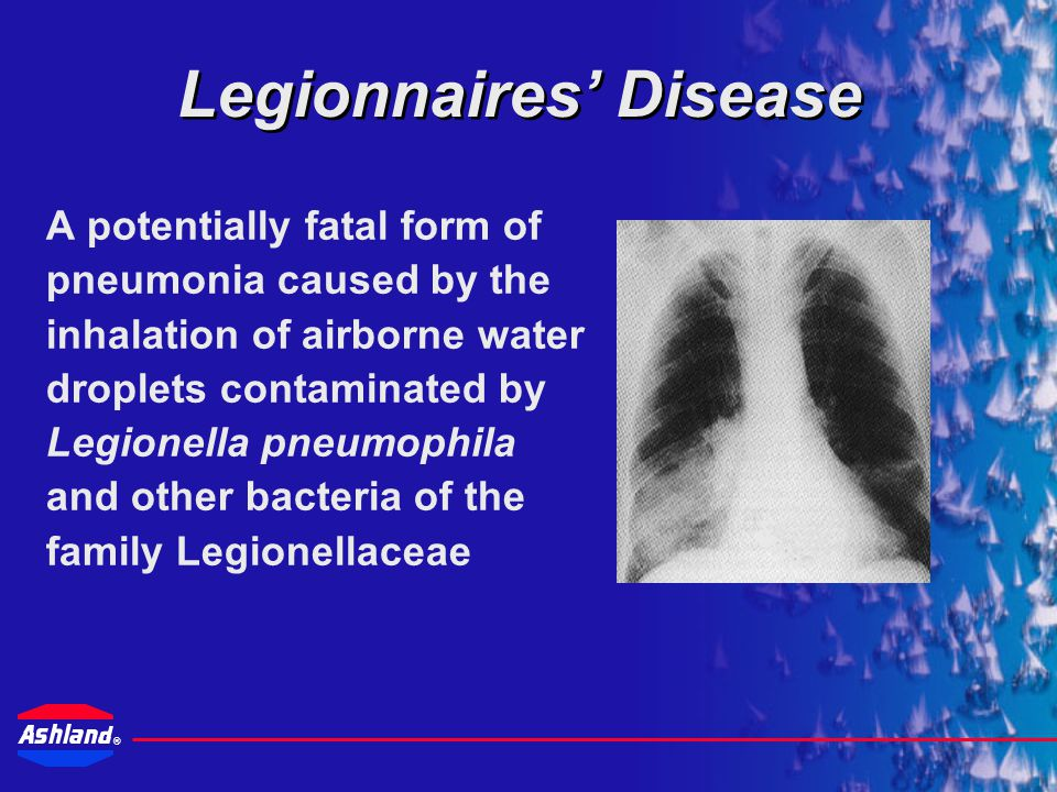 Drew Industrial Division Ashland Canada Corp Legionella Risk Management