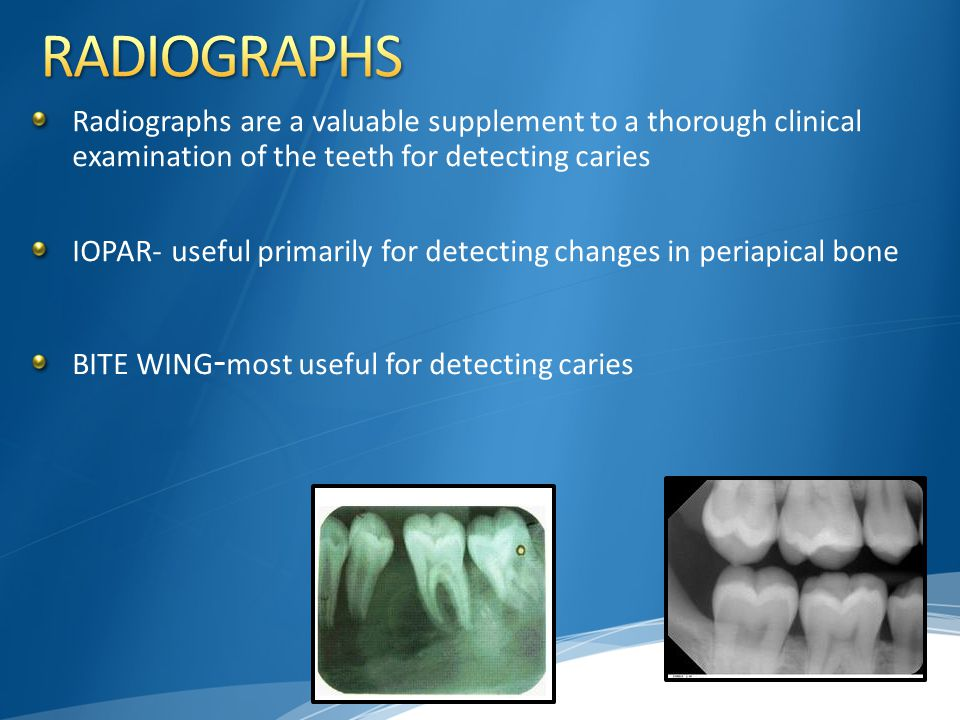 Radiographs are a valuable supplement to a thorough clinical examination of the teeth for detecting caries IOPAR- useful primarily for detecting chang