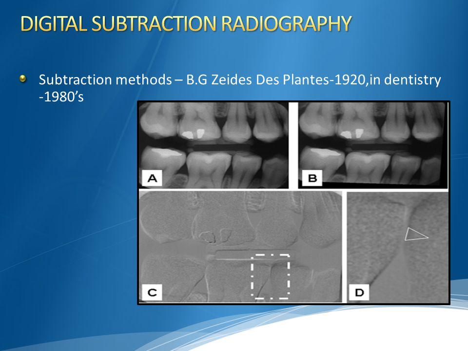 Subtraction methods – B.G Zeides Des Plantes-1920,in dentistry -1980's