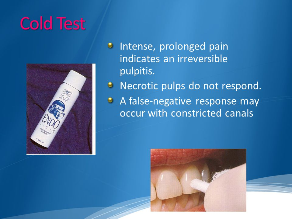 Cold Test Intense, prolonged pain indicates an irreversible pulpitis. Necrotic pulps do not respond. A false-negative response may occur with constric