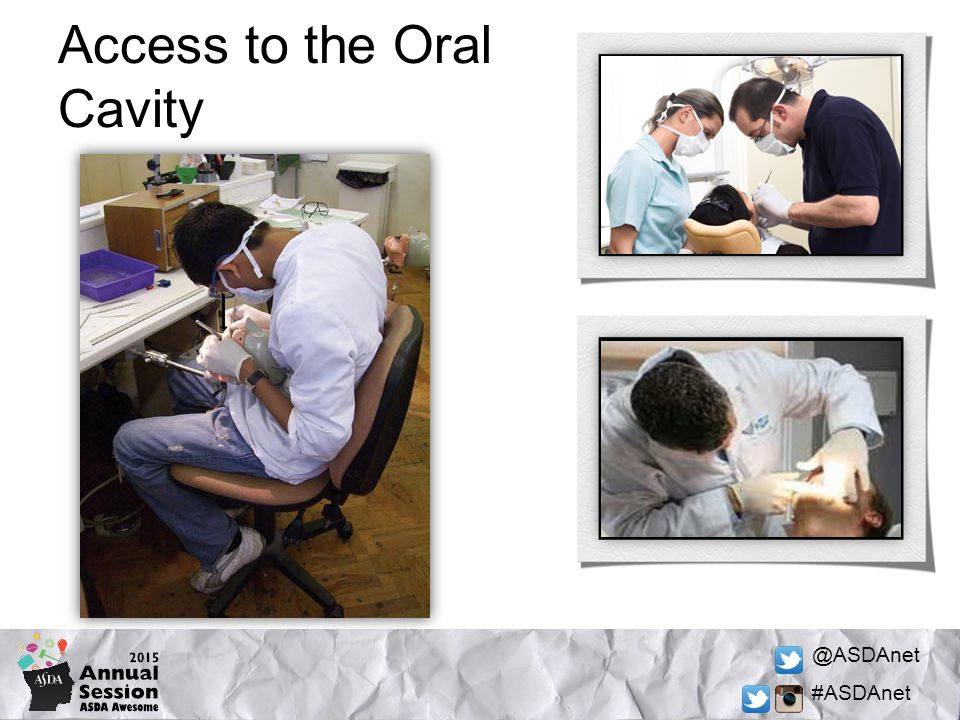 @ASDAnet #ASDAnet Access to the Oral Cavity