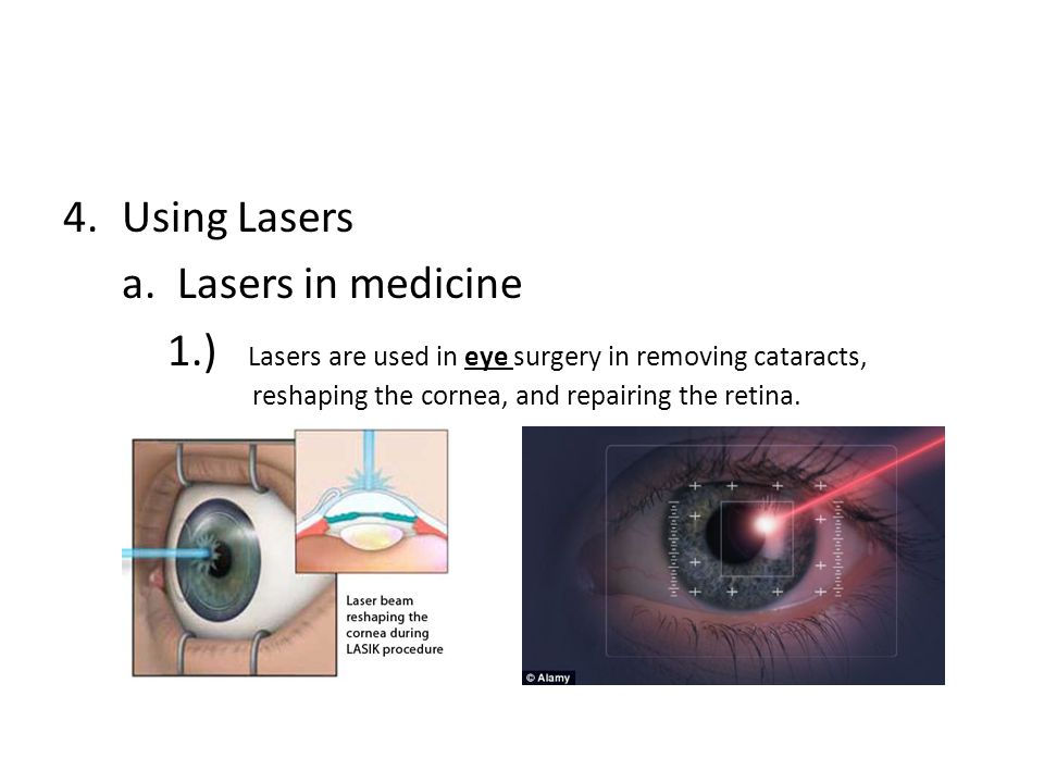4.Using Lasers a.