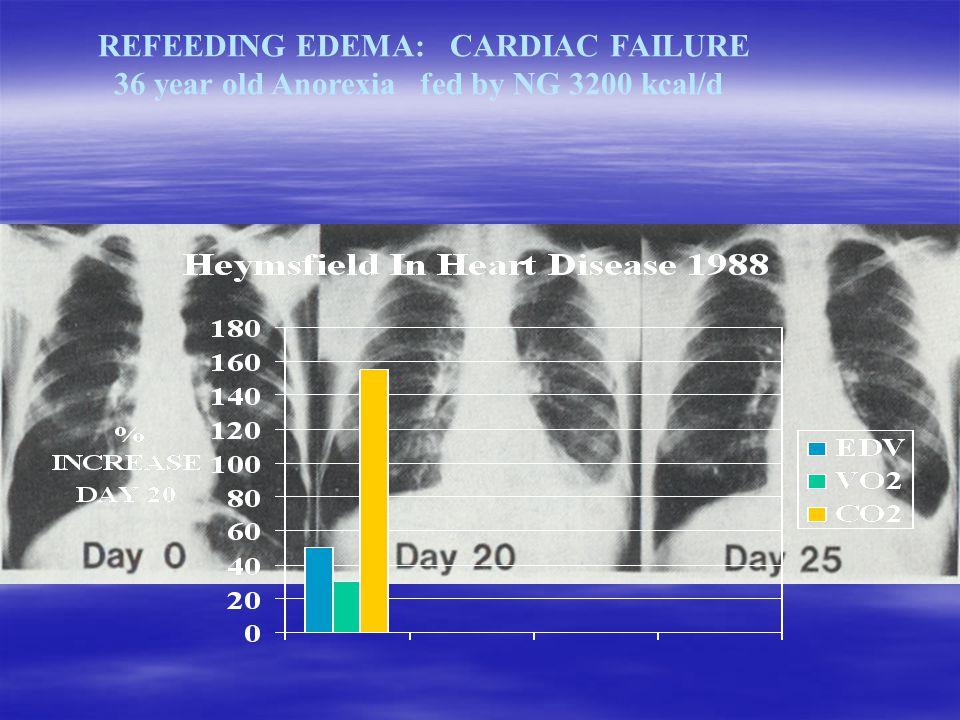 REFEEDING EDEMA: CARDIAC FAILURE 36 year old Anorexia fed by NG 3200 kcal/d