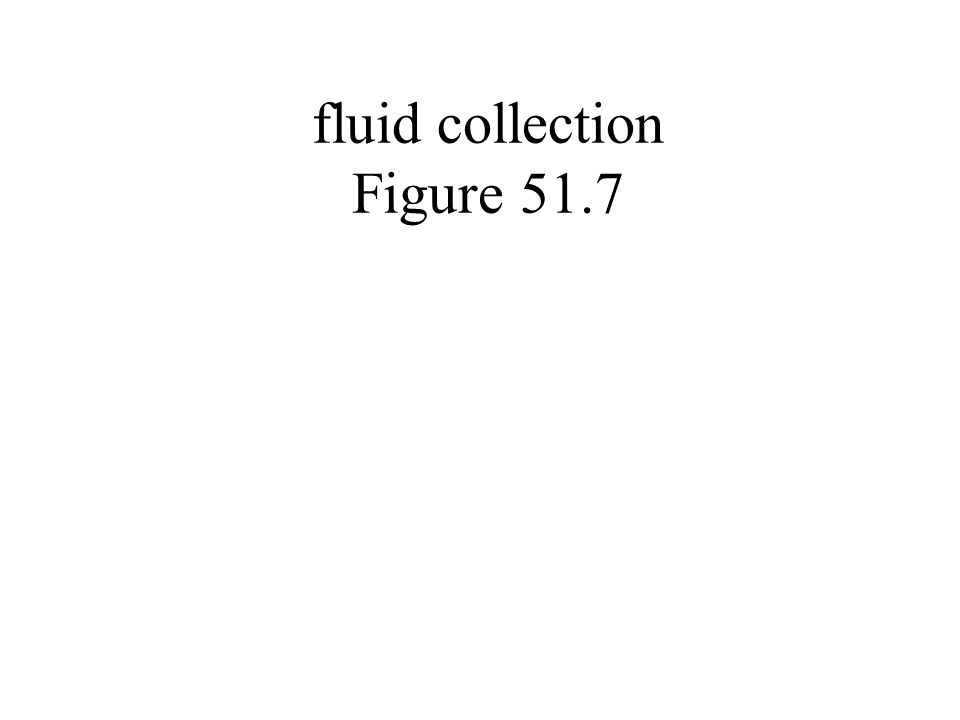 fluid collection Figure 51.7