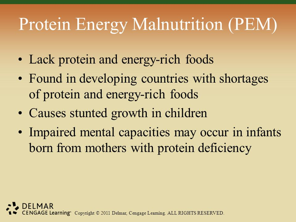 Copyright © 2011 Delmar, Cengage Learning. ALL RIGHTS RESERVED. Protein Energy Malnutrition (PEM) Lack protein and energy-rich foods Found in developi