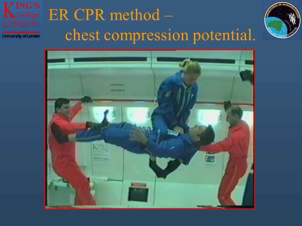 ER CPR method – chest compression potential.