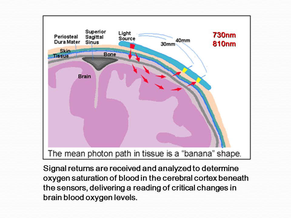 Signal returns are received and analyzed to determine oxygen saturation of blood in the cerebral cortex beneath the sensors, delivering a reading of critical changes in brain blood oxygen levels.