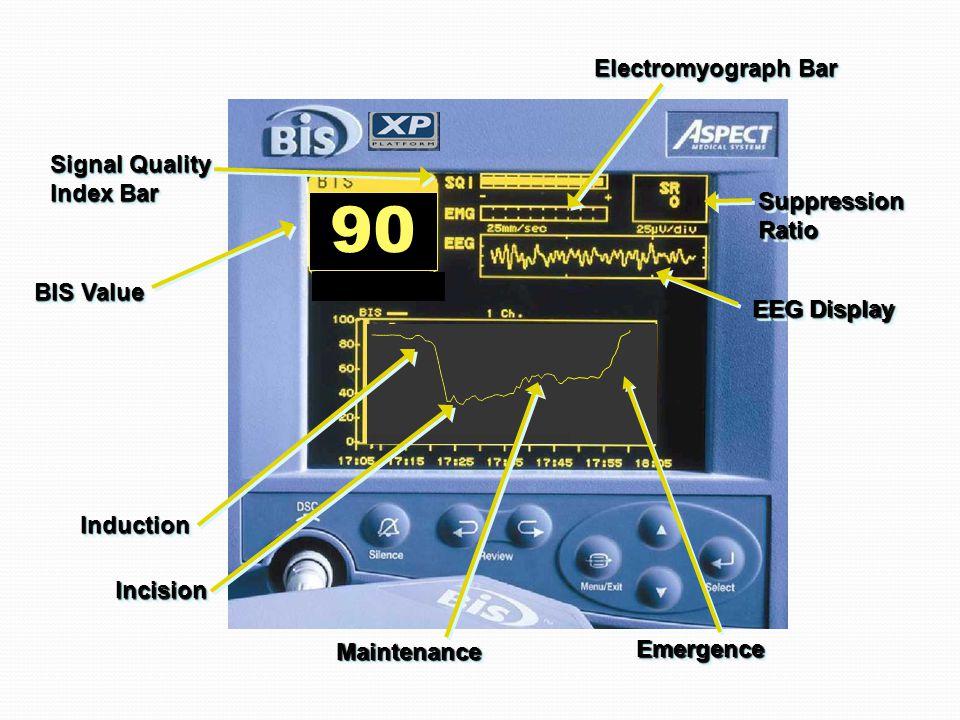 InductionInduction IncisionIncision MaintenanceMaintenance EmergenceEmergence 90 EEG Display SuppressionRatioSuppressionRatio Electromyograph Bar Signal Quality Index Bar Signal Quality Index Bar BIS Value