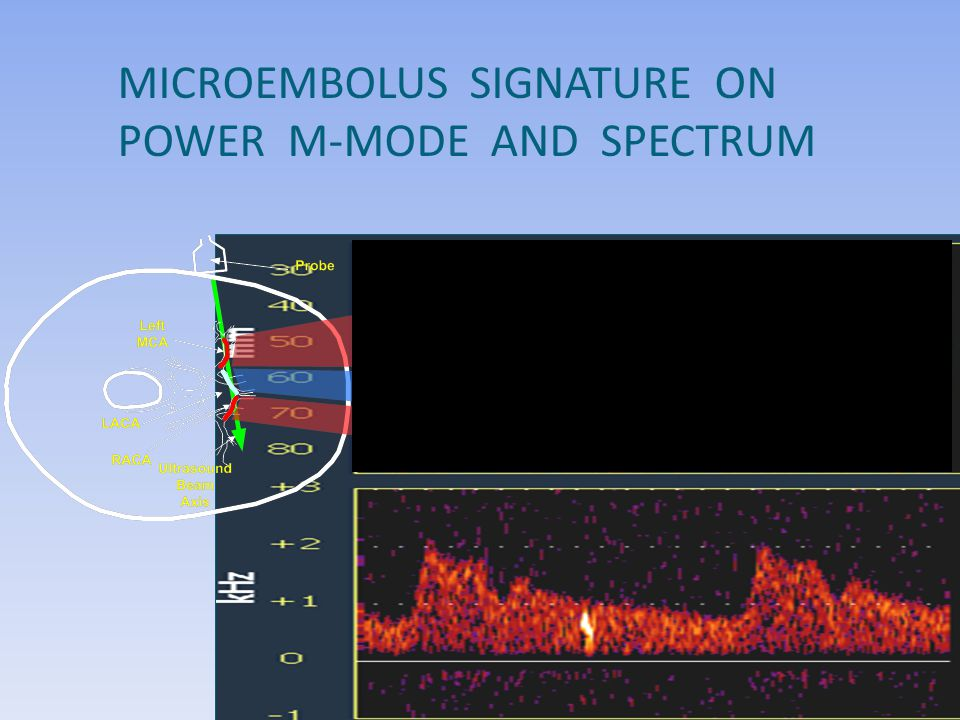 MICROEMBOLUS SIGNATURE ON POWER M-MODE AND SPECTRUM