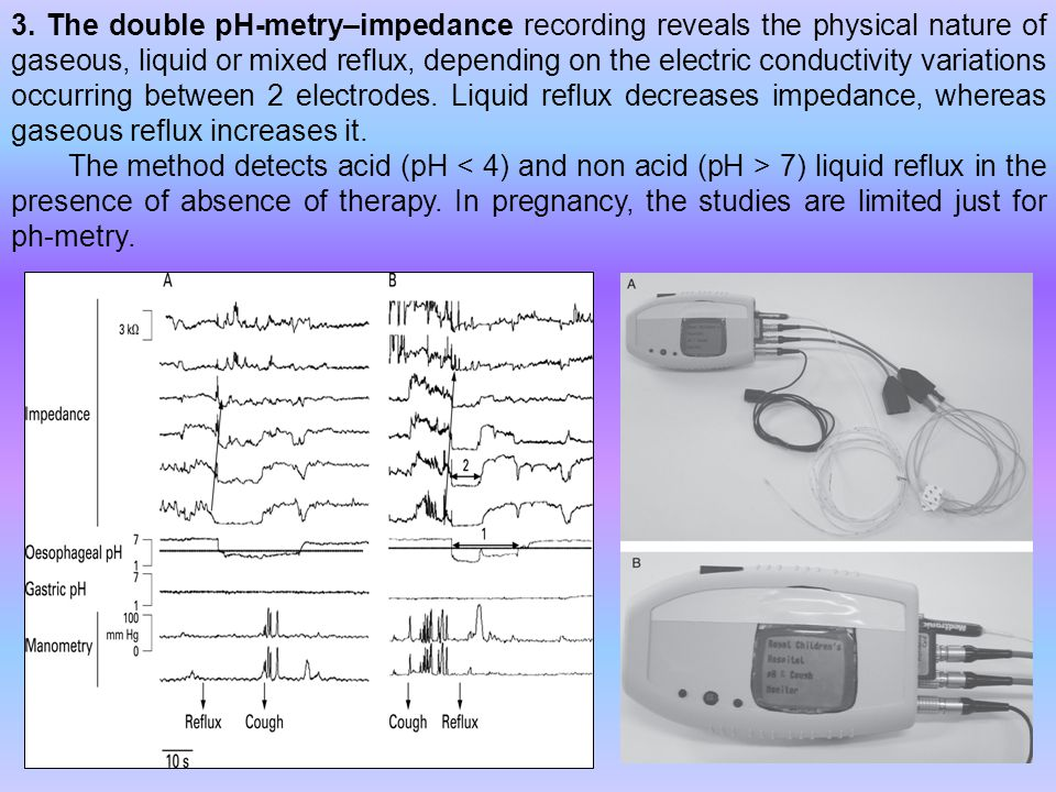 3. The double pH-metry–impedance recording reveals the physical nature of gaseous, liquid or mixed reflux, depending on the electric conductivity vari