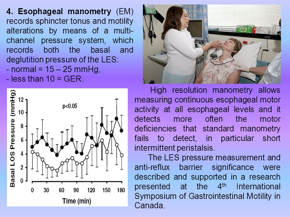 4. Esophageal manometry (EM) records sphincter tonus and motility alterations by means of a multi- channel pressure system, which records both the bas