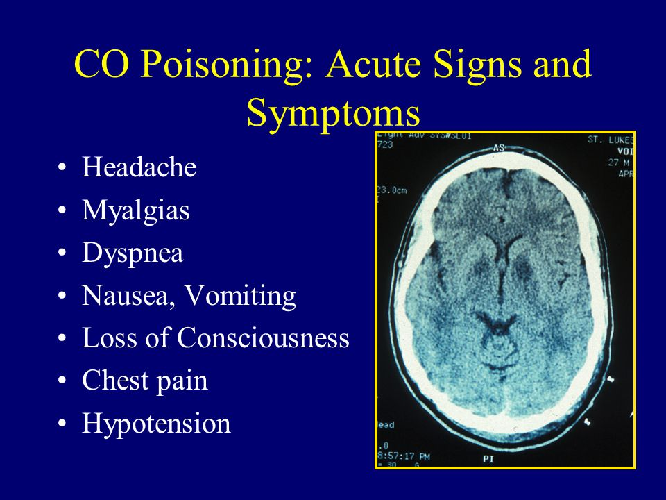 CO Poisoning: Acute Signs and Symptoms Headache Myalgias Dyspnea Nausea, Vomiting Loss of Consciousness Chest pain Hypotension