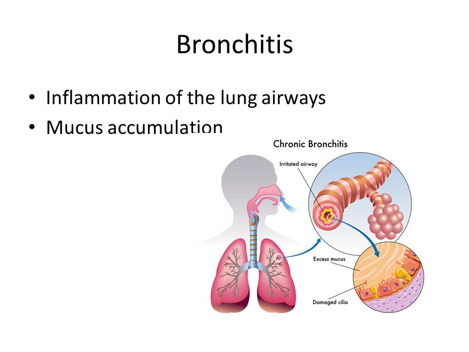 Smoking  Cilia: Hair-like extensions lining the trachea  Traps dust and particles  Traps microorganisms  Mucus secretion  Cigarette smoking prevents cilia from beating in wave-like pattern, moving the microorganisms upward  Effects ---- Bronchitis, Emphysema