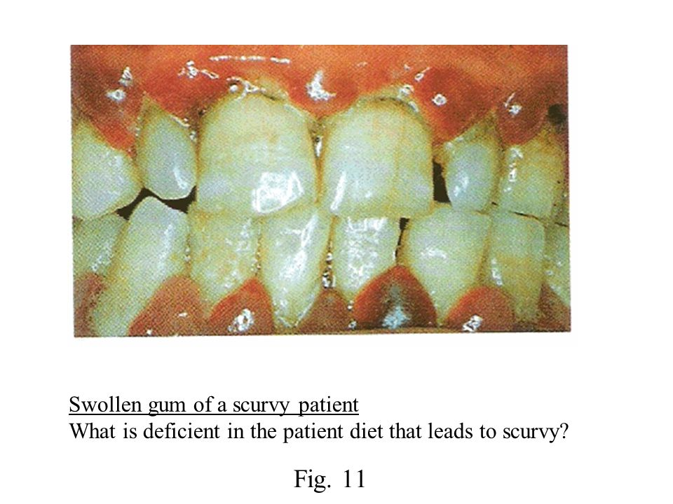 Swollen gum of a scurvy patient What is deficient in the patient diet that leads to scurvy Fig. 11