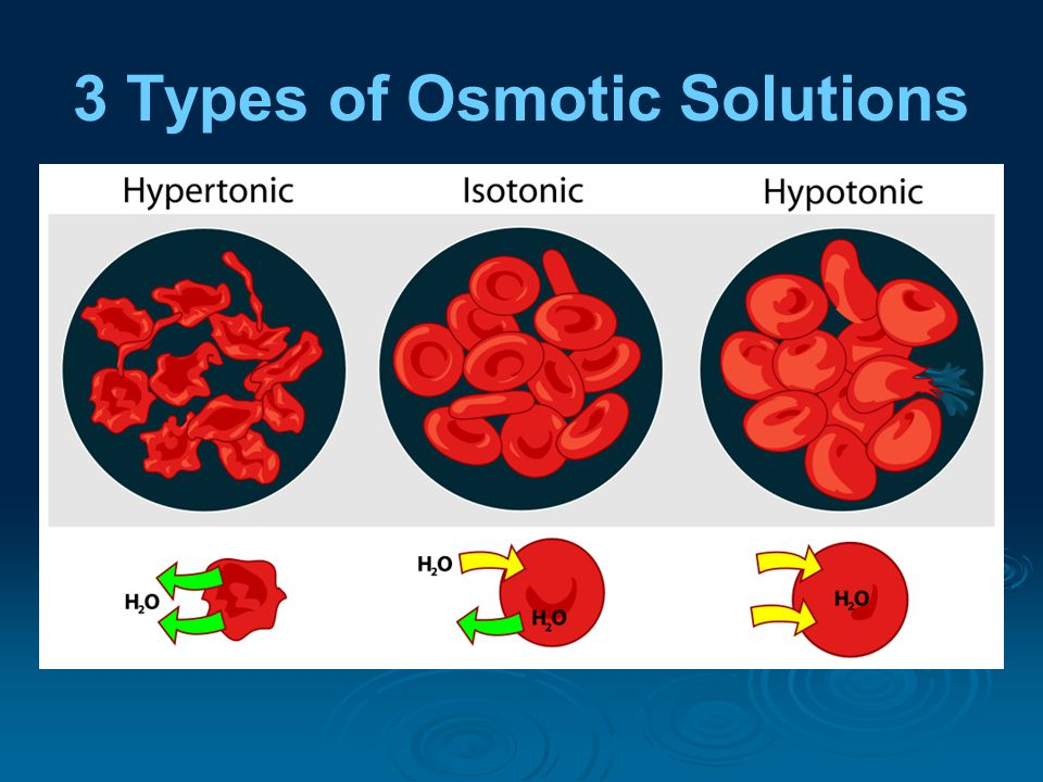 3 Types of Osmotic Solutions