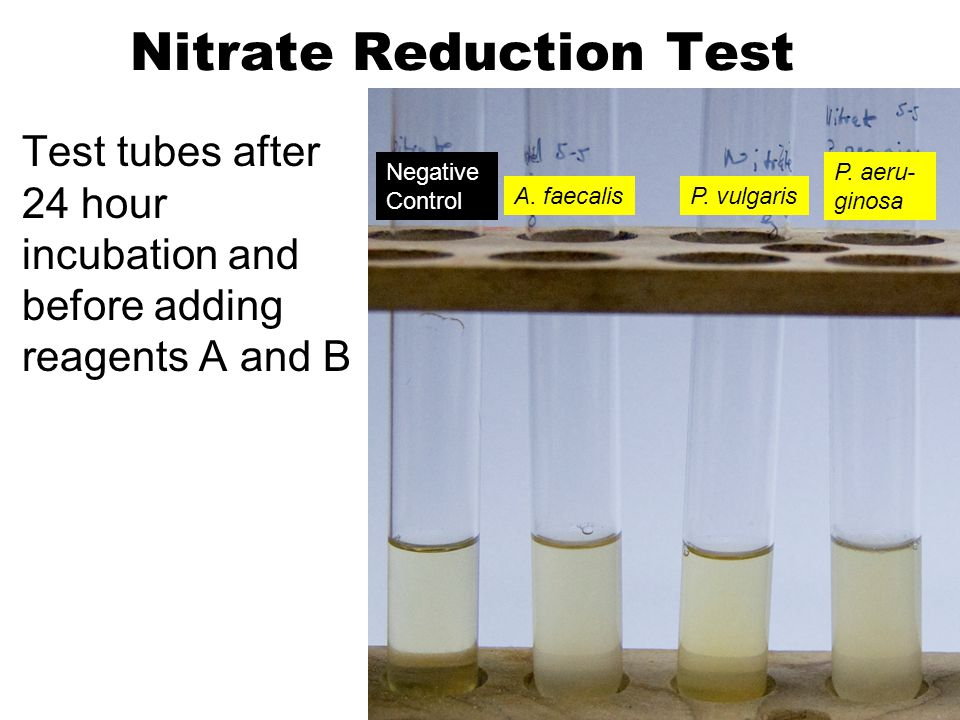 Nitrate Reduction Test Test tubes after 24 hour incubation and before adding reagents A and B A.