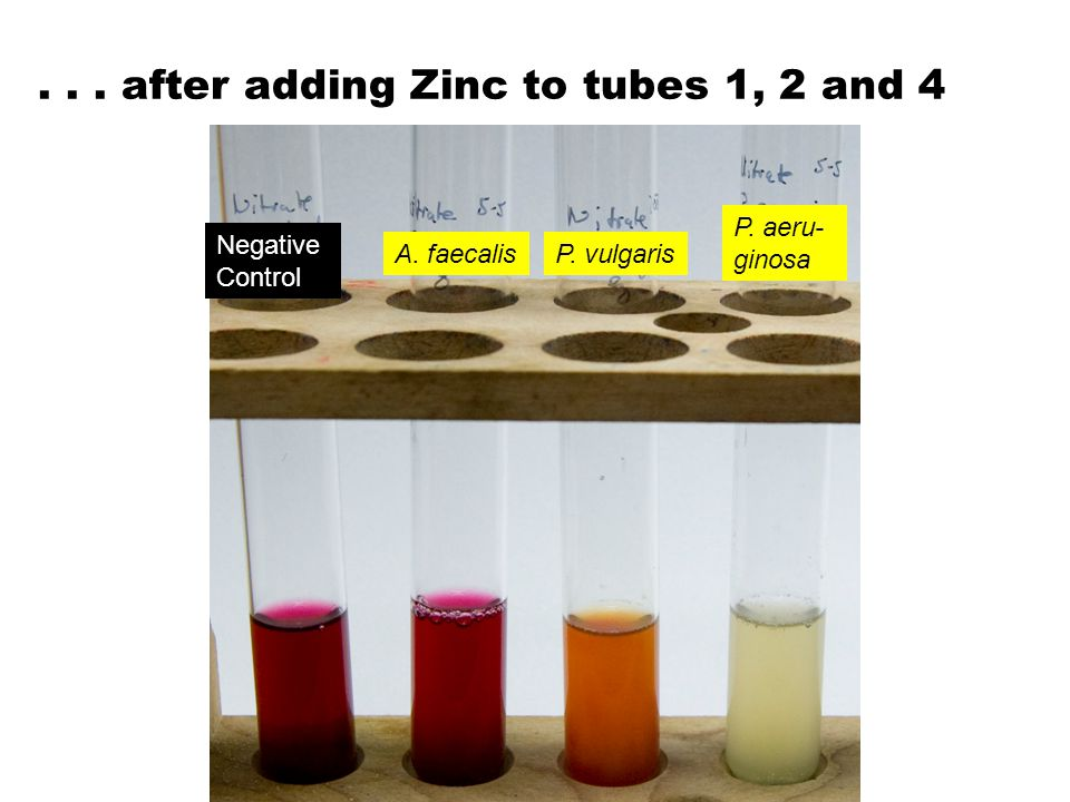 ... after adding Zinc to tubes 1, 2 and 4 A. faecalisP. vulgaris P. aeru- ginosa Negative Control