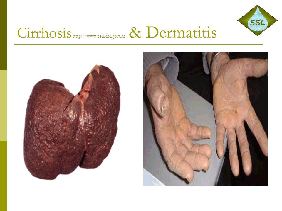 Cirrhosis http://www.osh.dol.govt.nz & Dermatitis SSL
