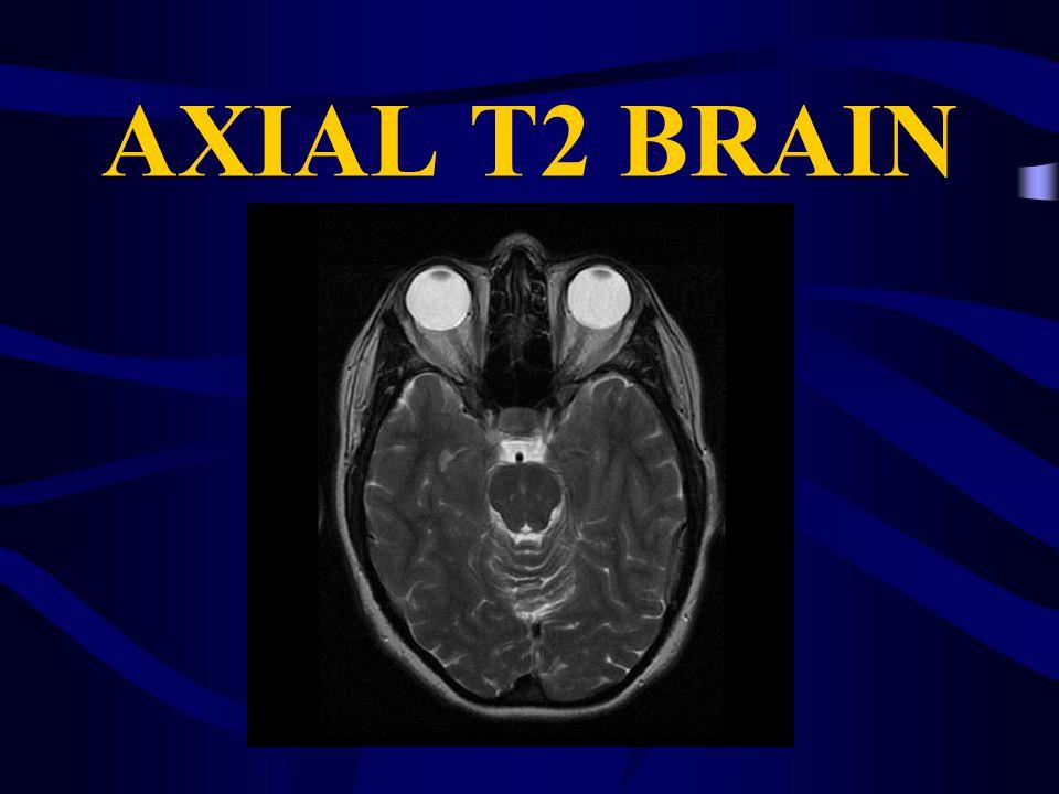AXIAL T2 BRAIN