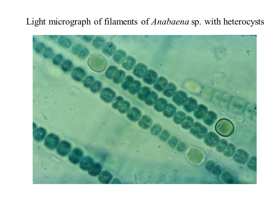 Light micrograph of filaments of Anabaena sp. with heterocysts
