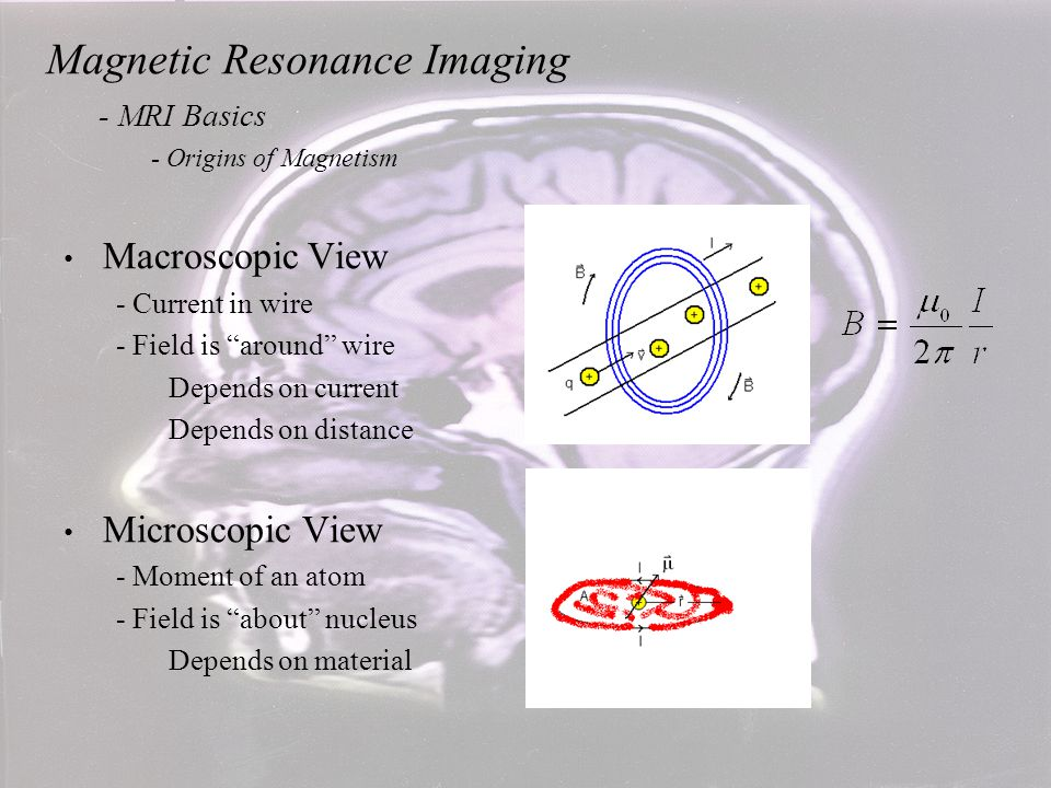 Magnetic Resonance Imaging - MRI Basics - Magnetic Precession The proton's motion in the nucleus defines a small current loop and thus defines a magnetic moment.