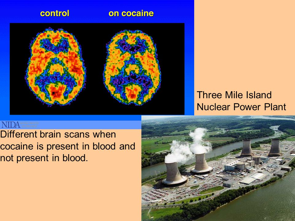 Different brain scans when cocaine is present in blood and not present in blood.