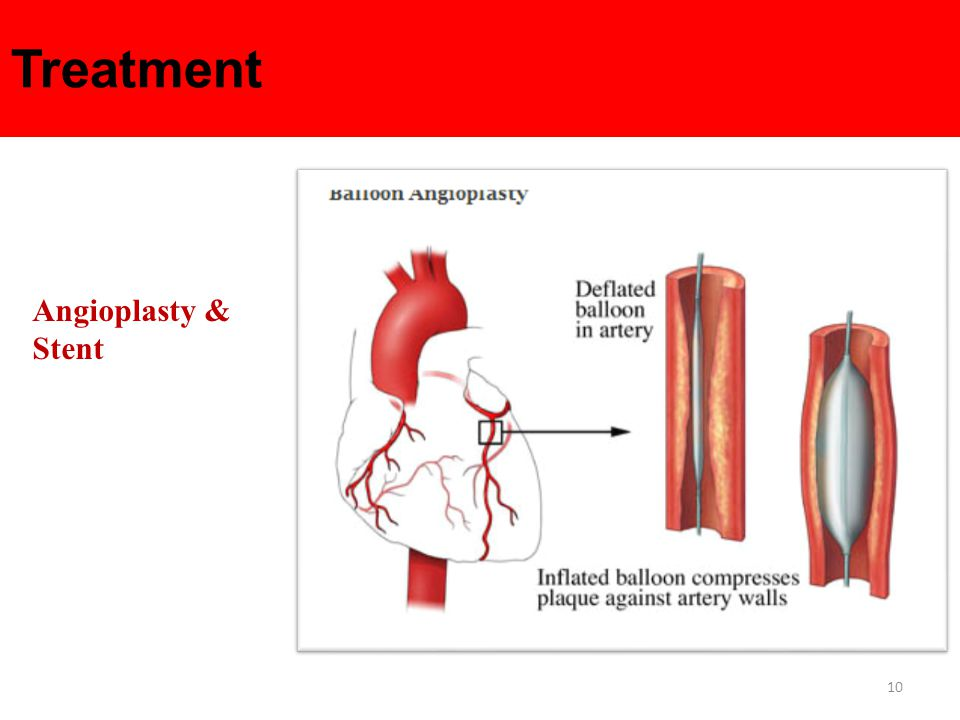 10 Treatment Angioplasty & Stent