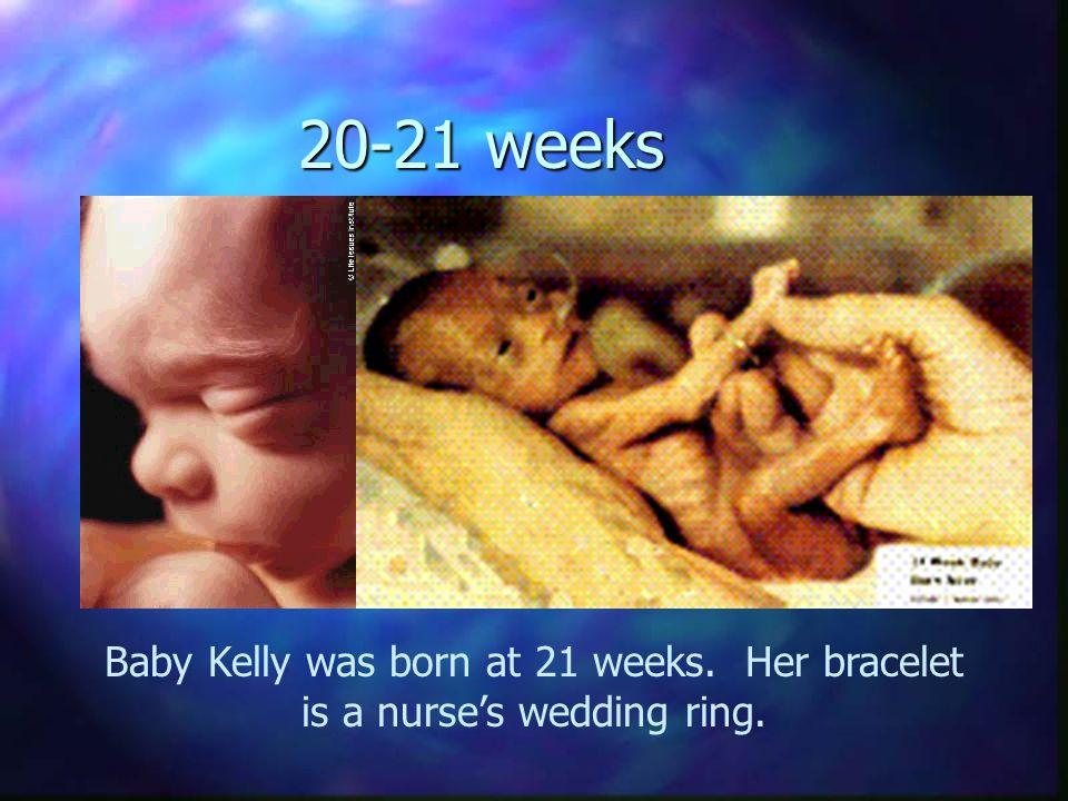 20-21 weeks Baby Kelly was born at 21 weeks. Her bracelet is a nurse's wedding ring.