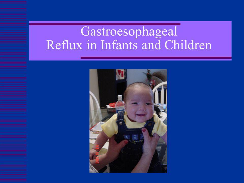 Gastroesophageal Reflux in Infants and Children Melissa Velez