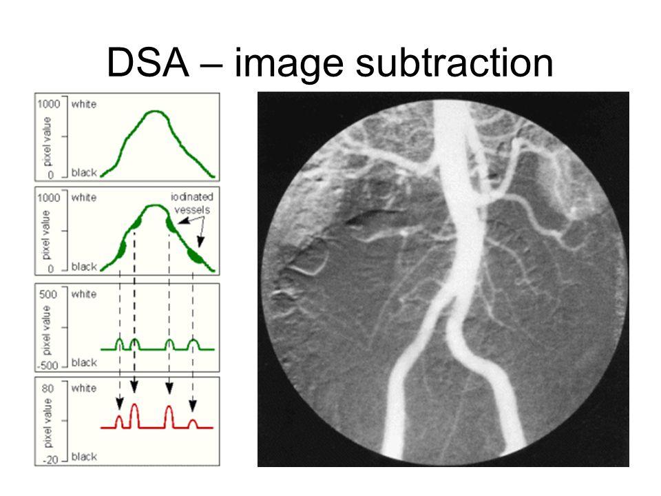 DSA – image subtraction