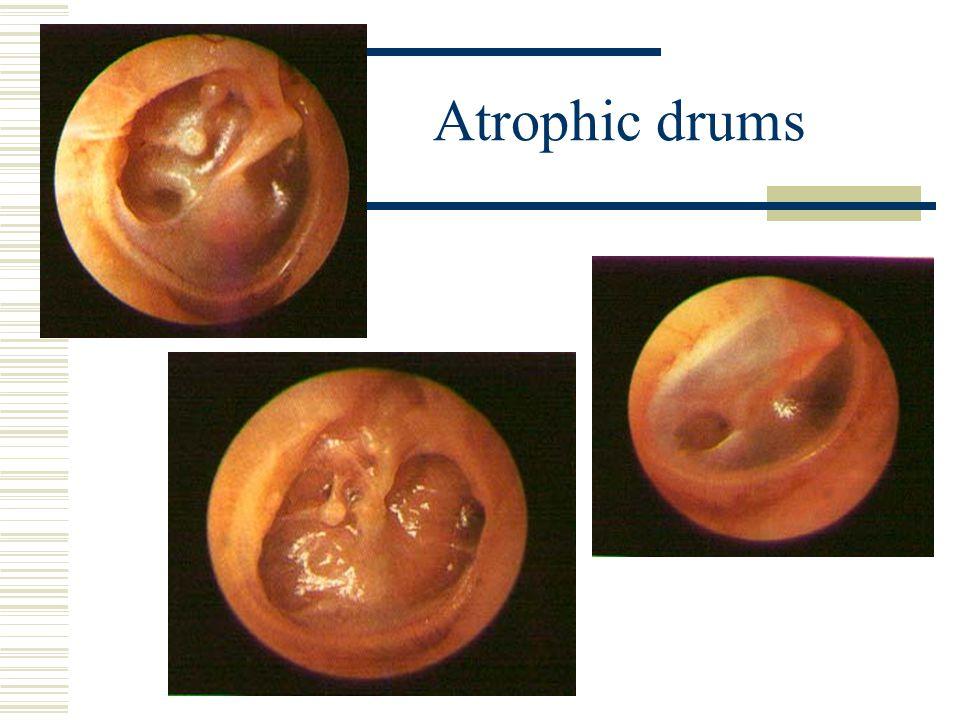 Atrophic drums