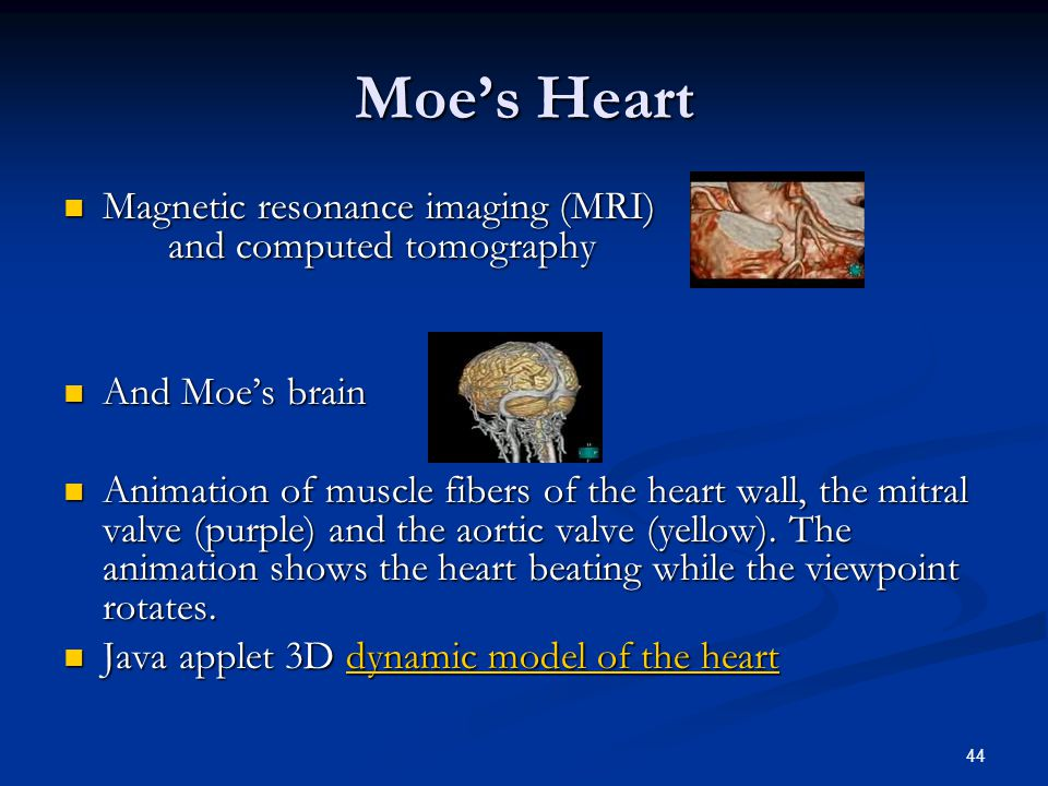 44 Moe's Heart Magnetic resonance imaging (MRI) and computed tomography Magnetic resonance imaging (MRI) and computed tomography And Moe's brain And Moe's brain Animation of muscle fibers of the heart wall, the mitral valve (purple) and the aortic valve (yellow).