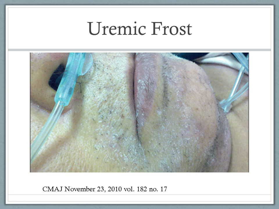 Uremic Frost CMAJ November 23, 2010 vol. 182 no. 17