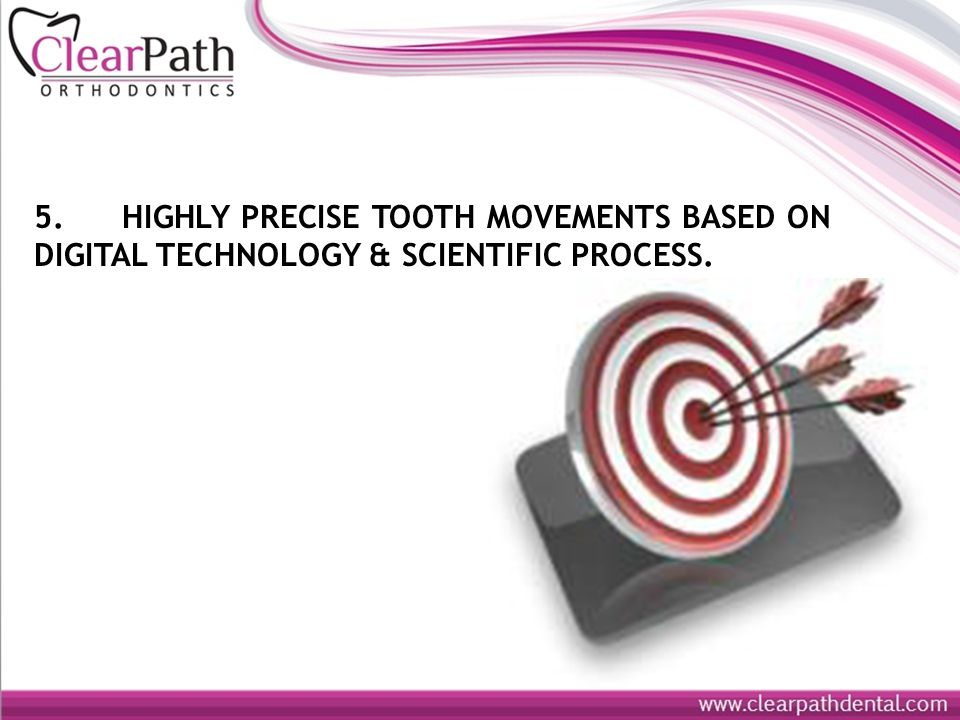 5. HIGHLY PRECISE TOOTH MOVEMENTS BASED ON DIGITAL TECHNOLOGY & SCIENTIFIC PROCESS.