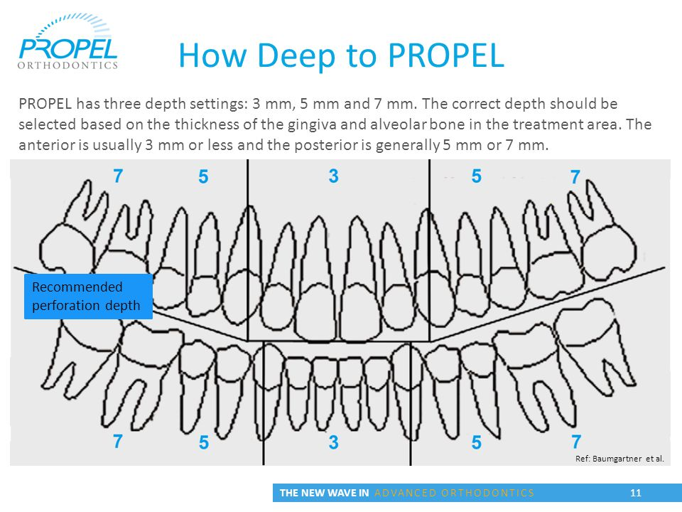 THE NEW WAVE IN ADVANCED ORTHODONTICS 11 PROPEL has three depth settings: 3 mm, 5 mm and 7 mm.