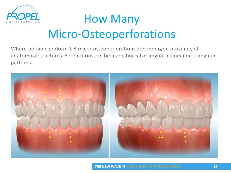 THE NEW WAVE IN ADVANCED ORTHODONTICS 12 How Many Micro-Osteoperforations Where possible perform 1-3 micro-osteoperforations depending on proximity of anatomical structures.