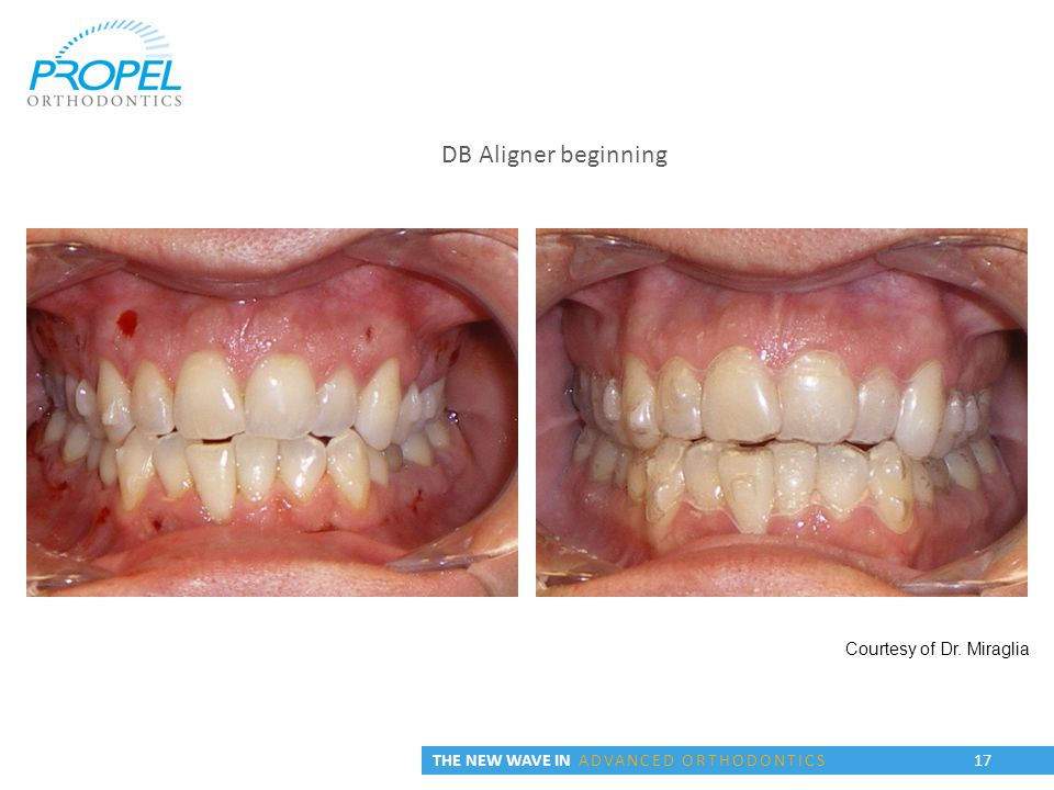 Courtesy of Dr. Miraglia DB Aligner beginning THE NEW WAVE IN ADVANCED ORTHODONTICS 17