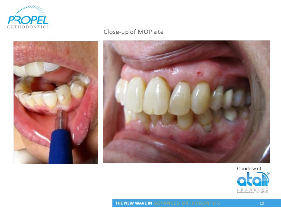 THE NEW WAVE IN ADVANCED ORTHODONTICS 19 Courtesy of Close-up of MOP site