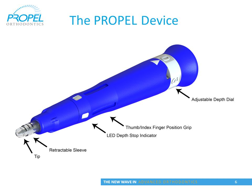6 The PROPEL Device