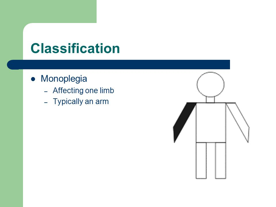 Classification Monoplegia – Affecting one limb – Typically an arm