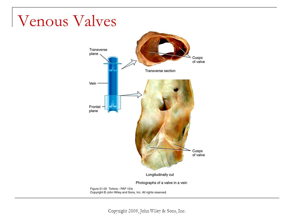 Copyright 2009, John Wiley & Sons, Inc. Venous Valves