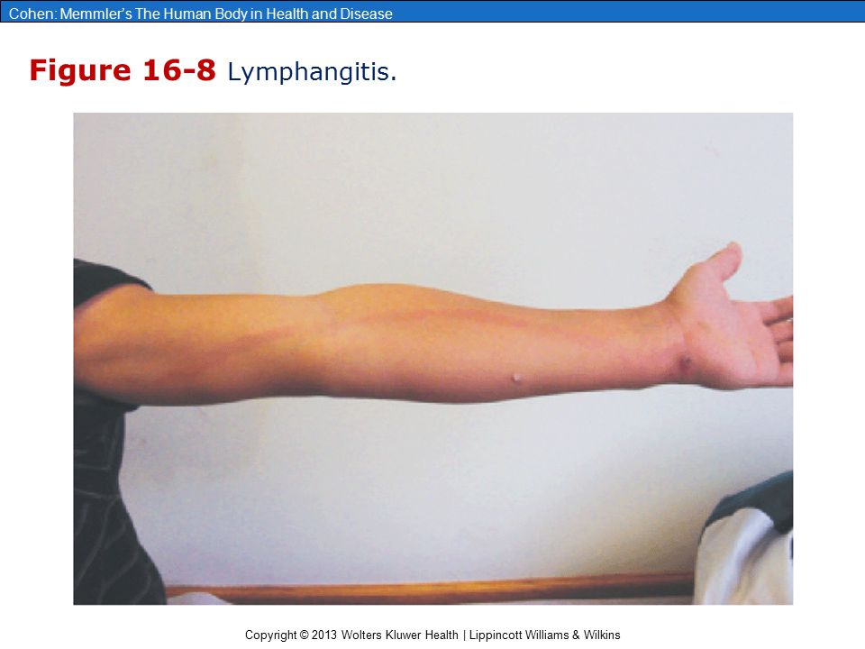 Copyright © 2013 Wolters Kluwer Health | Lippincott Williams & Wilkins Cohen: Memmler's The Human Body in Health and Disease Figure 16-8 Lymphangitis.