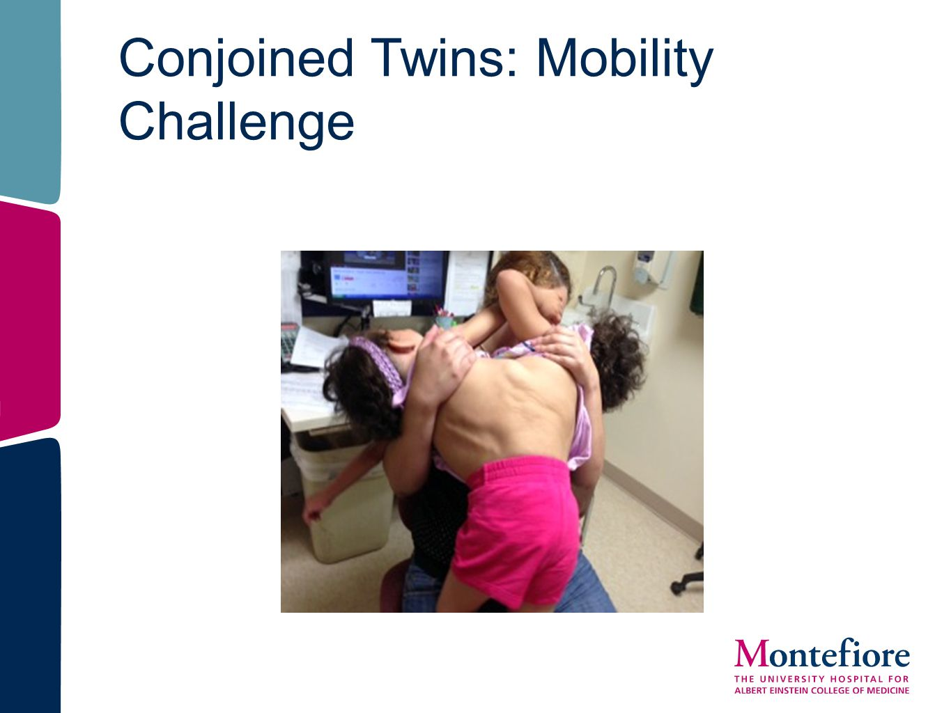 Conjoined Twins: Mobility Challenge