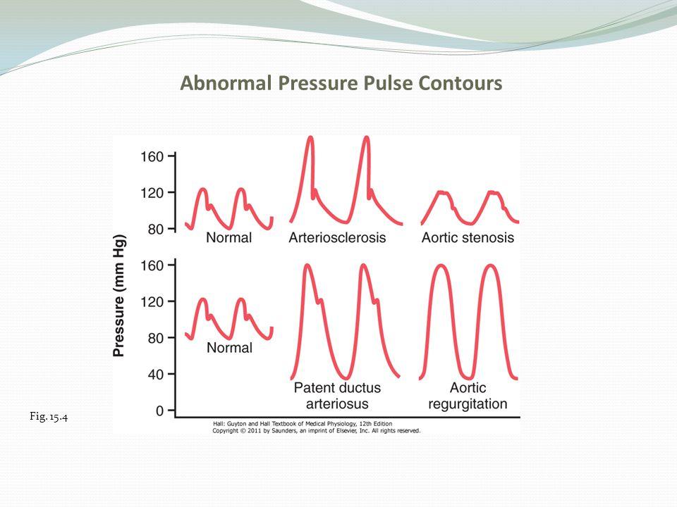 Abnormal Pressure Pulse Contours Fig. 15.4