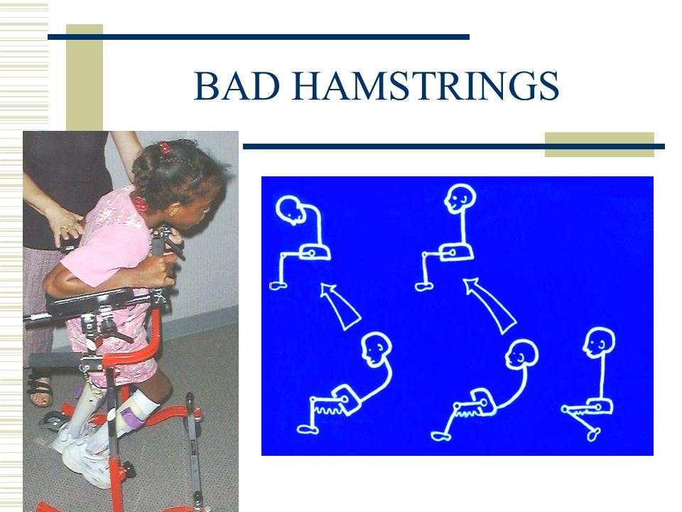 BAD HAMSTRINGS