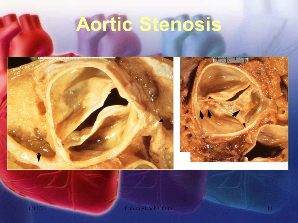11/12/02Lubna Piracha, D.O.11 Aortic Stenosis